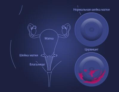 Цервикальный канал матки у женщин