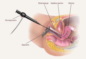 диагностическая офисная гистероскопия