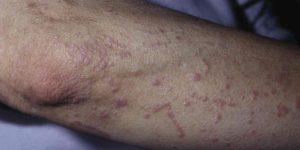 склерозирующий атрофический лихен