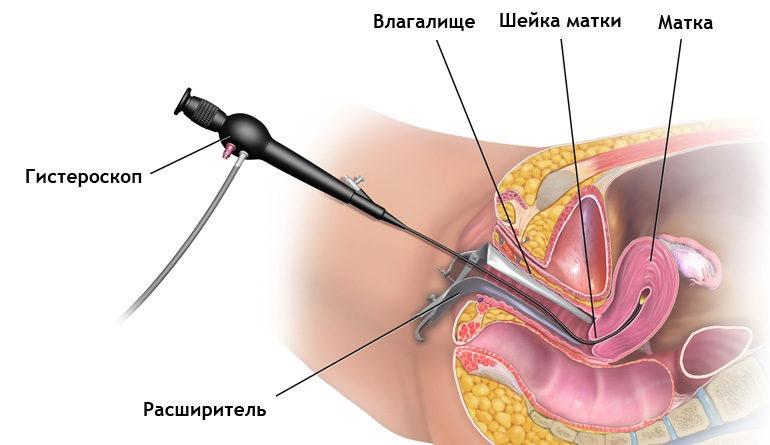 раздельное диагностическое выскабливание матки