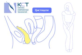 Недержание мочи - частый симптом опущения тазовых органов, цистоцеле