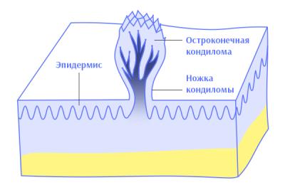 Строение кондилом - схема