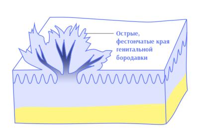 Остроконечная кондилома - как выглядит