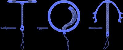 Виды внутриматочных спиралей (ВМС)