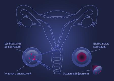 Как проходит процедура конизации шейки матки