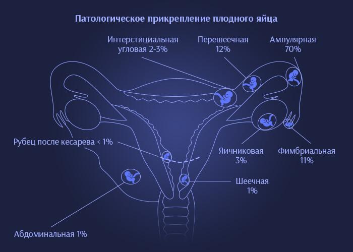 Внематочная и патологическая беременность - схема прикрепления плодного яйца