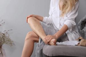 Варикозная болезнь вен